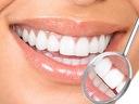 Почистване на зъбен камък + полиране за 19,99 лв. или избелване на зъби от