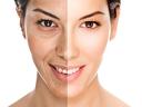 Поднови свежестта и младостта на лицето с диамантена терапия за 9.90лв от студио