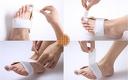 Погрижете се за изпъкнало кокалче на палеца със силиконови шини или нощна ортеза