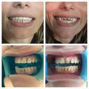 Почистване на зъбен камък с пиезокристален ултразвук + полиране със 72% отстъпка, от Дентална клиника СитиДент