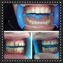 Почистване на зъбен камък с ултразвук, полиране с Air Flow и обстоен профилактичен преглед