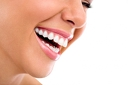 Фотополимерна пломба + преглед на зъбите и план за лечение, от д-р Снежина Цекова
