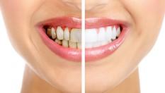 Клинично избелване на зъби