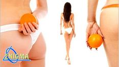 """Антицелулитна процедура на лаборатории Тегор, разработена с цел локално действие срещу затлъстяване и """"портокалова кожа""""на две зони по избор - за 39,90лв, вместо за 80лв, от Верига Дерматокозметични центрове Енигма"""