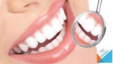 До 15 нюанса по-бели зъби! Професионално ИЗБЕЛВАНЕ НА ЗЪБИ с LED робот - лампа BEYOND POLUS + обстоен преглед - за 149.80лв, от СитиДент