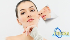 Микродермабразио на лице или тяло + неинжективна мезотерапия с кислород и натурален Collagen на Laboratorios Tegor за пигментни петна, акне, разширени пори, стрии, белези от операции само за 49.90лв, от Верига Дерматокозметични центрове ЕНИГМА