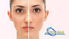 Лечение широкие поры на лице в