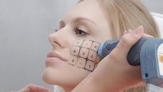 Неоперативен Фракционен RF-термолифтинг (THERMAGE &FRACTIONAL) на лице и брадичка + криотерапия - за 29.90лв, от Студио Kult Beauty! Подарете си стегната кожа с 85% намаление!