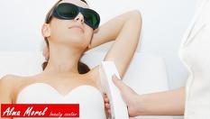 IPL фотоепилация за жени - подмишници, пълен интим, горна устна или брадичка от 4.50лв, от Студио Alma Morel