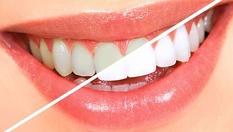 Снежно бели зъбки