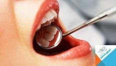 Почистване на зъбен камък с пиезокристален ултразвук, плюс полиране само за 19.90лв, от Дентална клиника СитиДент