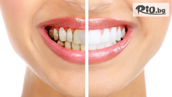 Супер ефективно клинично избелване за няколко нюанса по-бели зъби само за 30 минути, от Eвровита Дентал
