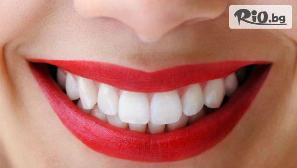 Професионално избелване на зъби с LED лампа-робот Beyond Polus с 62% отстъпка, от Стоматологичен кабинет Д-р Лозеви