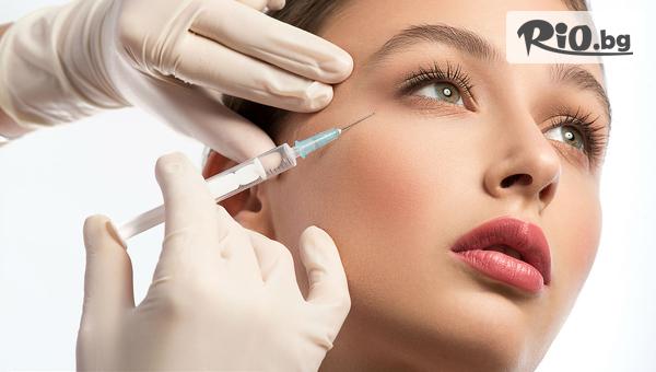 Поставяне на 1 мл дермален филър хиалуронова киселина Hyaluronica за запълване на бръчки или корекция на устни, от Стоматологичен кабинет д-р Лозеви