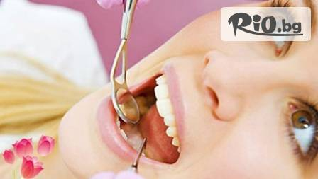 Обстоен преглед, почистване на зъбен камък с ултразвук и фотополимерна пломба за 34,90 лв