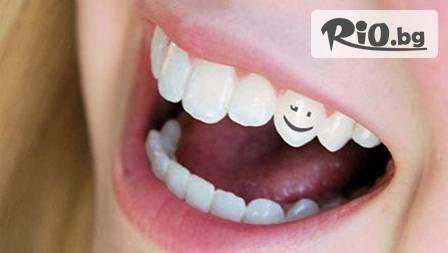 Зашеметяваща усмивка! Почистване на зъбен камък с ултразвук и полиране с Air Flow за 17.99 лв или фотополимерна пломба за 25 лв от Стомакс Дент