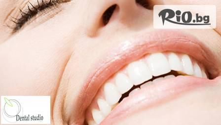 Чисти и здрави зъби! Почистване на зъбен камък и полиране с Air Flow за 22,90 лв. от Дентално студио N&B!