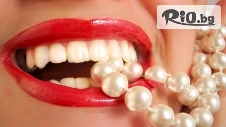 Обстоен преглед, почистване на зъбен камък с ултразвук и фотополимерна пломба за 33,90 лв