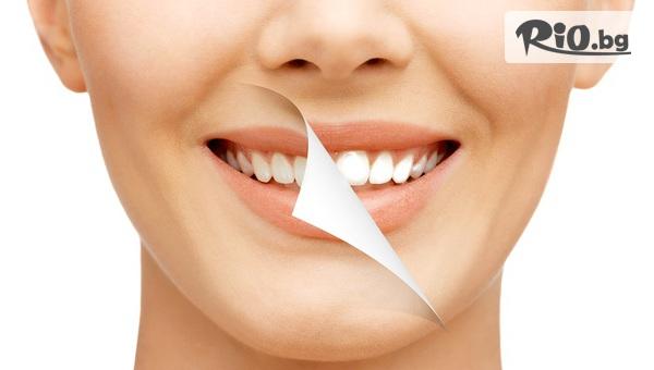 Избелване на зъби с LED лампа