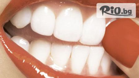 Бляскава усмивка - Преглед, почистване на зъбен камък и полиране или фотополимерна пломба от 19,90 лв. в кабинета на д-р Гонков