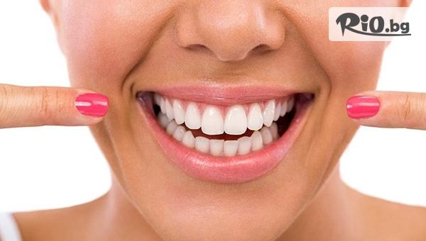 Бъдете отново усмихнати със зъбен имплант + контролен преглед от Eвровита Дентал