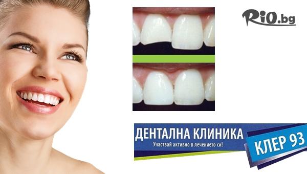 Красива усмивка! Бондинг - поставяне на фасета от висококачествен композитен материал, естетическо възстановяване на зъб, от Дентална клиника Клер-93