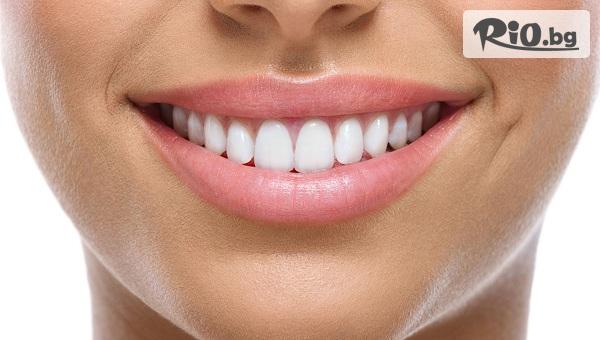 Бондинг на 1 зъб с фотополимерна фасета с 63% отстъпка, от Д-р Джонова