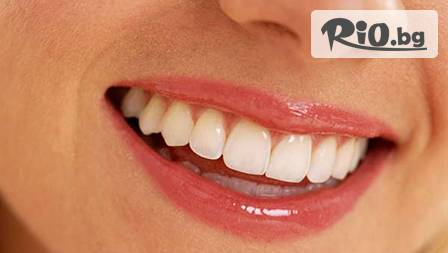 Почистване на зъбен камък за 14,99 лв. или избелване с избелващ гел от MAGICALDENT