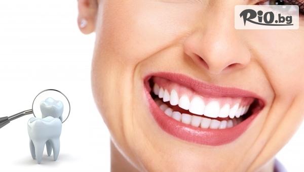 За твоята красива усмивка! Eстетично възстановяване на преден зъб с висококачествена фотополимерна фасета, от Eвровита Дентал