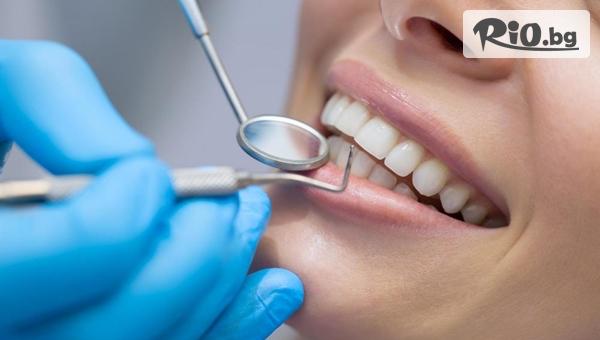 Реминерализация - лечебно-възстановителна процедура за укрепване на емайла на зъбите, от Дентална клиника Персенк