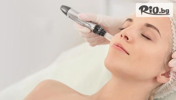 Иновативна безболезнена иглена мезотерапия с DermaPen - Микронидлинг на лице с 60% отстъпка, от Арт бутик Beauty Mirror