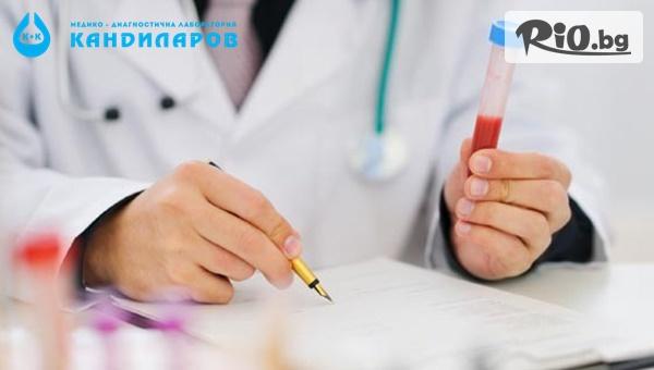 Изследване за метаболитен синдром
