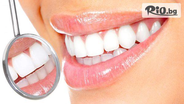 Възстановяване на преден зъб #1