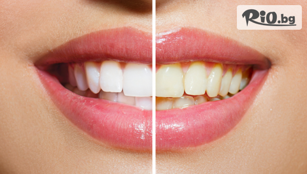 Професионално избелване на зъби с LED лампа робот Beyond Polus, от Дентална клиника Персенк