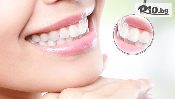 Почистване на зъбен камък с ултразвук и полиране + преглед, план за лечение и БОНУС със 78% отстъпка, от Дентален кабинет д-р Снежина Цекова
