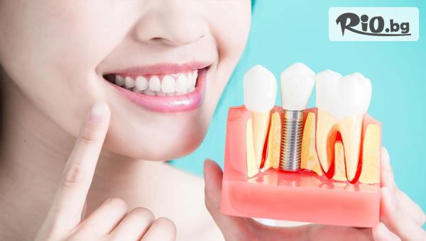 Преглед за зъбен имплант #1