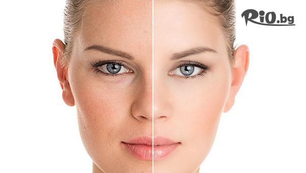 Терапия за избелване на лицето #1