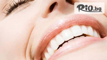 Почистване на зъбен камък с ултразвук и полиране на зъбите само за 21,90 лева вместо за 90 лв. от Д-р Светлана Борисова! За ослепителна усмивка!