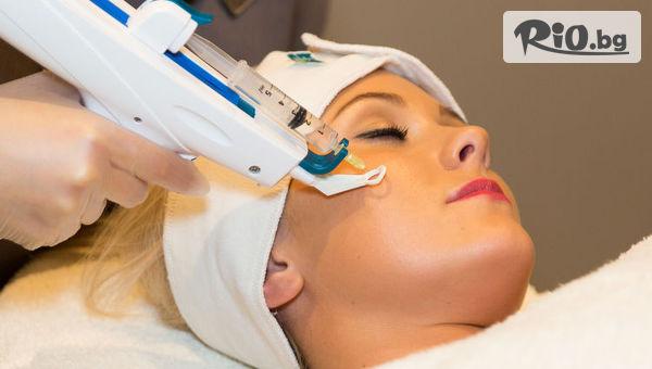 Иглена Мезотерапия на лице с мезо пистолет с 50% отстъпка, от Арт бутик Beauty Mirror