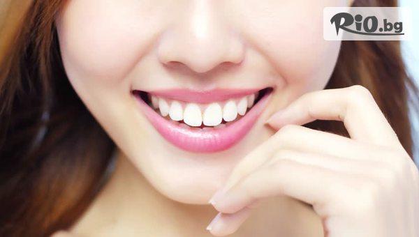 Шиниране на парадонтозен зъб #1