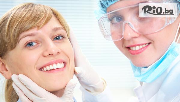 Красива усмивка! Поставяне на фасета от висококачествен композитен материал, естетическо възстановяване на зъб, обстоен профилактичен преглед и план на лечение, от Sun Dental