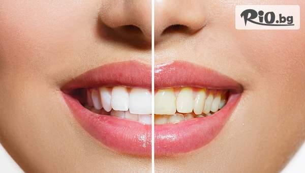 Система за домашно избелване на зъби с изработка на индивидуални шини + бонус почистване на зъбен камък и полиране на зъбите, от Дентален кабинет д-р Иван Чорбаджаков