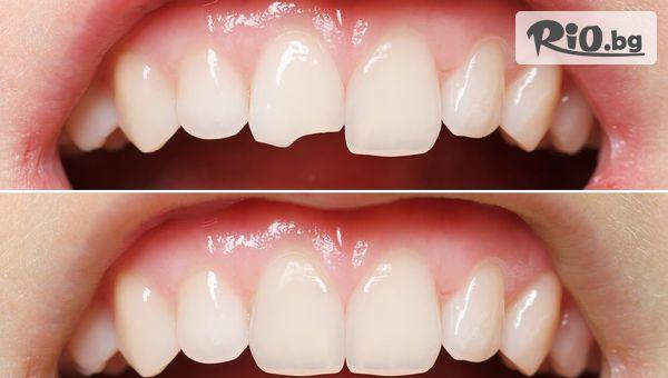 Eстетично възстановяване на преден зъб с високоестетична фотополимерна фасета (бондинг), от Дентален кабинет д-р Иван Чорбаджаков