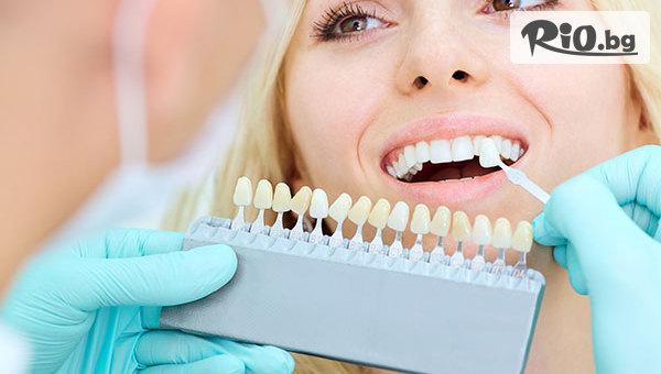 Почистване на зъбен камък + избелване с паста + обстоен профилактичен преглед, от Д-р Ваня Николова