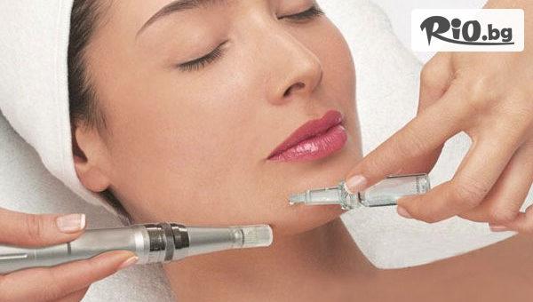 Мезотерапия (Микронидълинг) на лице с хиалуронова киселина или лифтинг ефект с DERMA PEN + Бонус: диамантено микродермабразио, от Tesori Beauty Salon