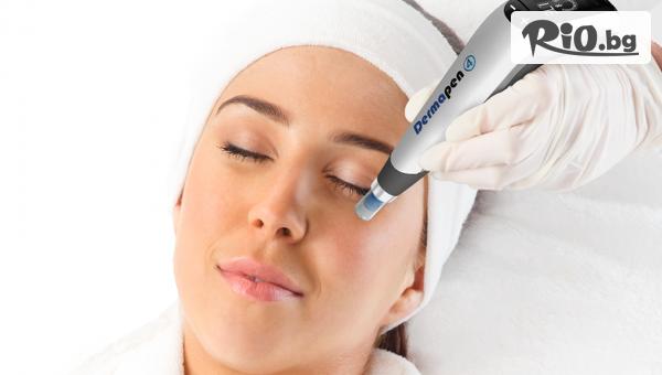 Колагенова индукционна терапия Дермапен на лице, от Център за естетична и холистична медицина Симона