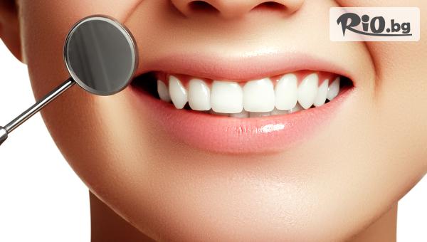 Почистване на зъбен камък и плака #1
