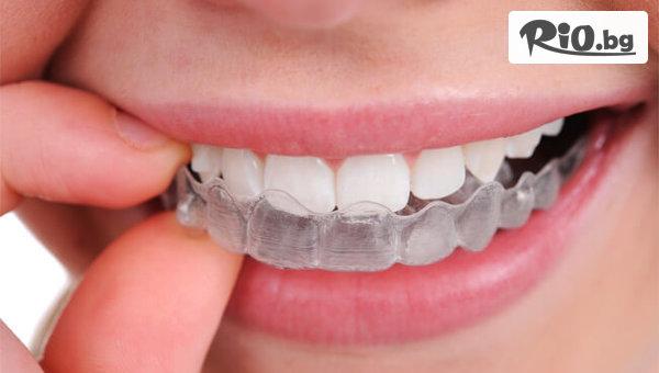 Домашно избелване на зъби