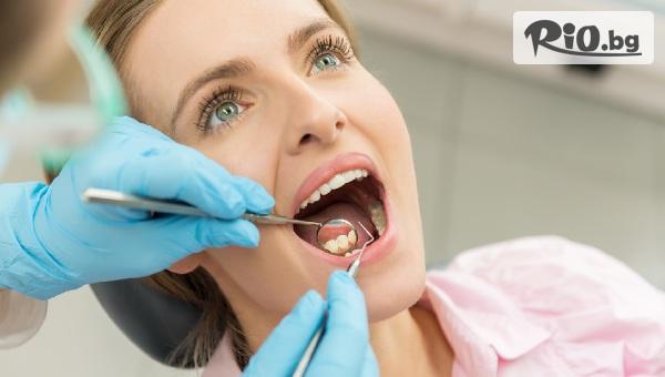 Бондинг на 1 зъб