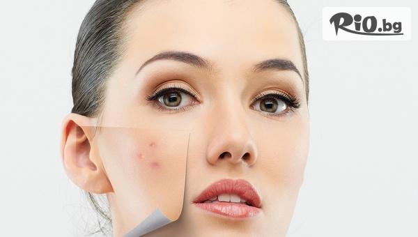 Терапия за мазна кожа